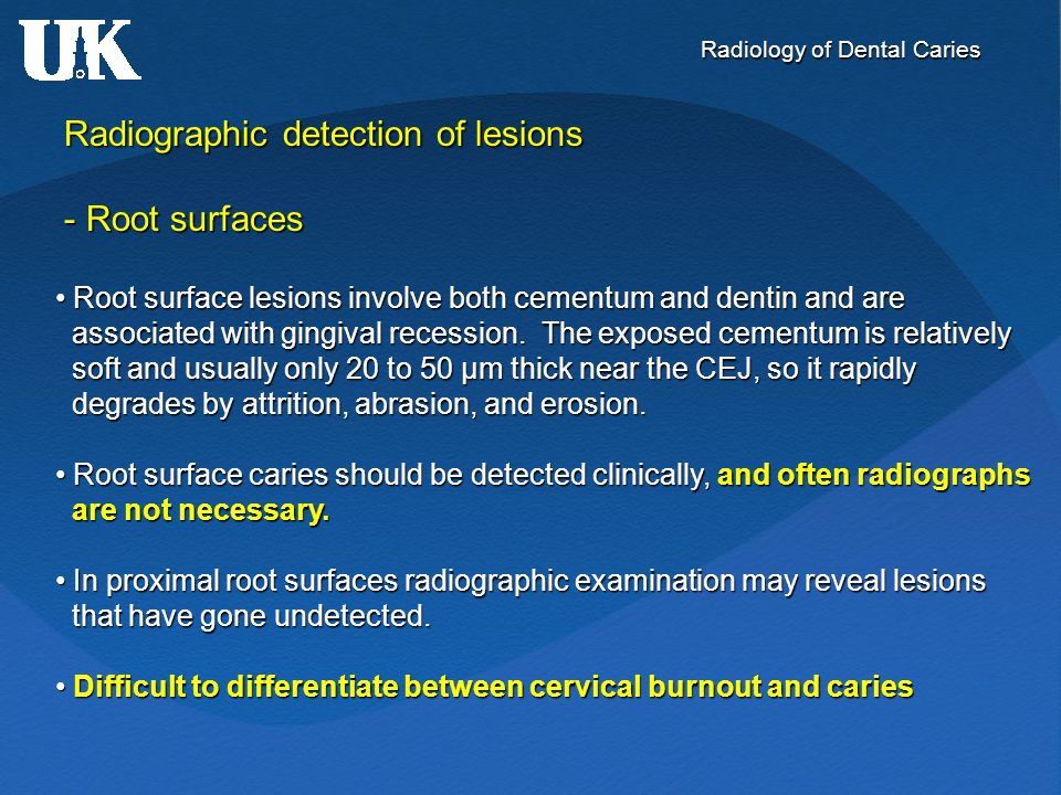 Radiology of Dental Caries Radiographic detection of lesions - Root surfaces Root surface lesions involve both cementum and dentin and are Root surfac