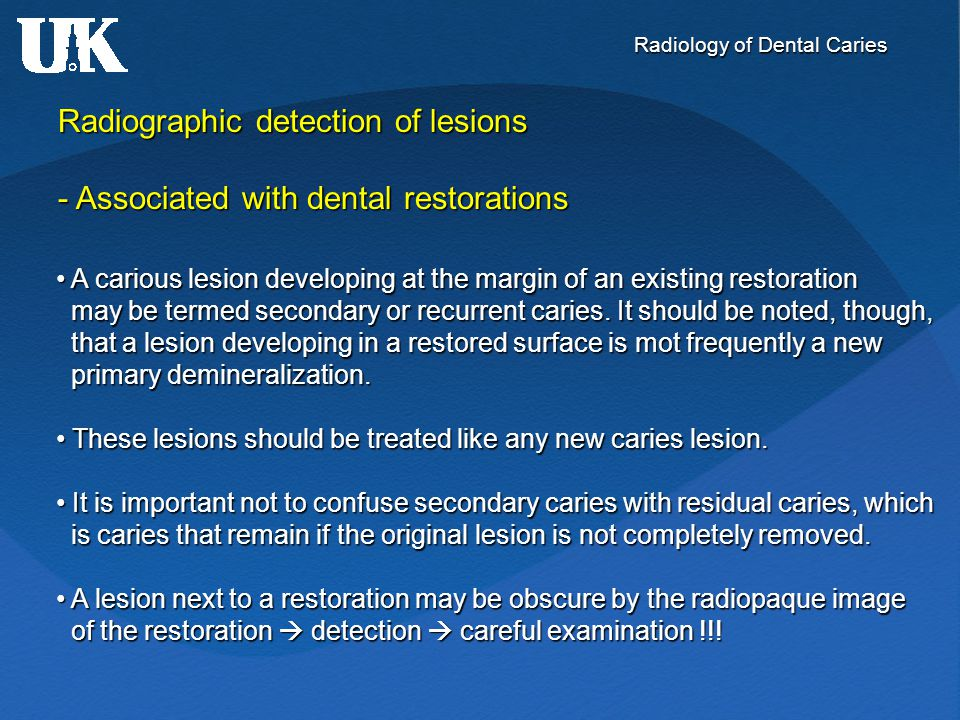 Radiology of Dental Caries Radiographic detection of lesions - Associated with dental restorations A carious lesion developing at the margin of an exi