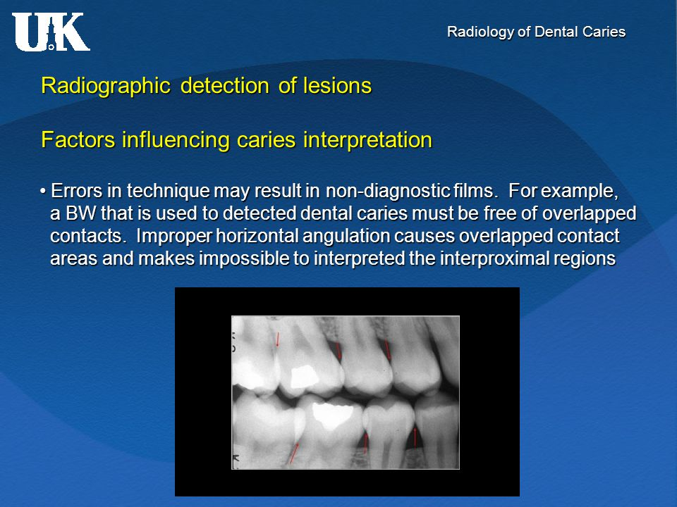 Radiology of Dental Caries Radiographic detection of lesions Factors influencing caries interpretation Errors in technique may result in non-diagnosti