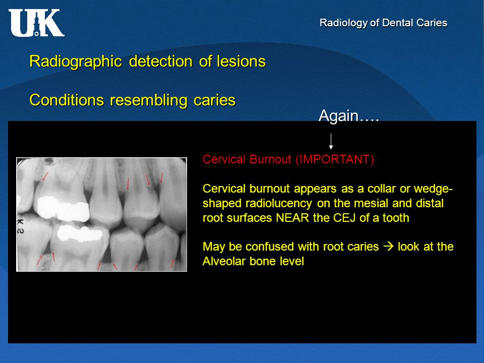 Radiology of Dental Caries Radiographic detection of lesions Conditions resembling caries Cervical Burnout (IMPORTANT) Cervical burnout appears as a c