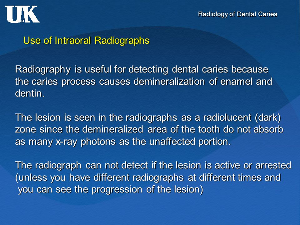 Radiology of Dental Caries Radiographic detection of lesions - Associated with dental restorations Restorative materials vary in their radiographic appearance depending Restorative materials vary in their radiographic appearance depending on thickness, density, atomic number, and the x-ray beam energy used on thickness, density, atomic number, and the x-ray beam energy used to make the radiograph  some materials can be confused with caries: to make the radiograph  some materials can be confused with caries: calcium hydroxide is a good example calcium hydroxide is a good example