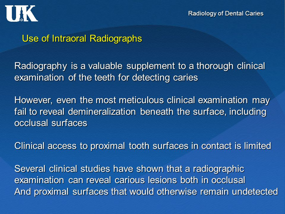 Radiology of Dental Caries Use of Intraoral Radiographs Radiography is a valuable supplement to a thorough clinical examination of the teeth for detec
