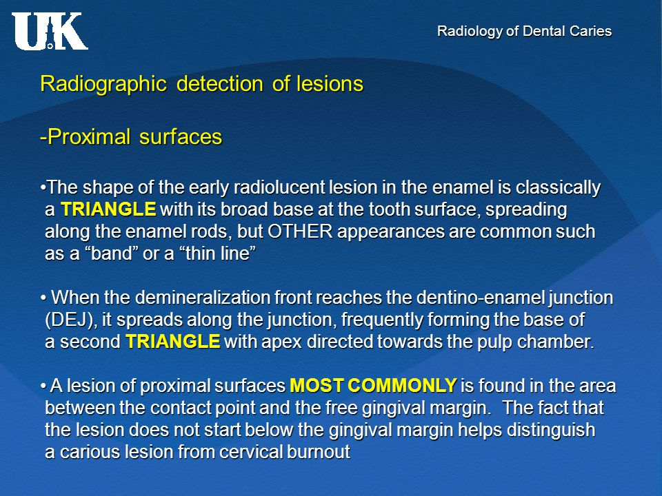 Radiology of Dental Caries Radiographic detection of lesions -Proximal surfaces The shape of the early radiolucent lesion in the enamel is classically