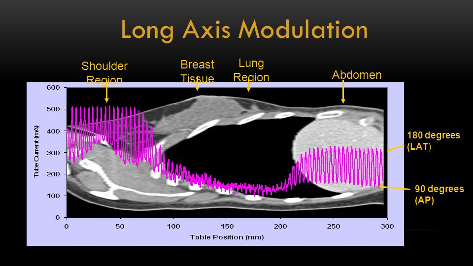 90 degrees (AP) Shoulder Region Lung Region Abdomen 180 degrees (LAT) Breast Tissue Long Axis Modulation