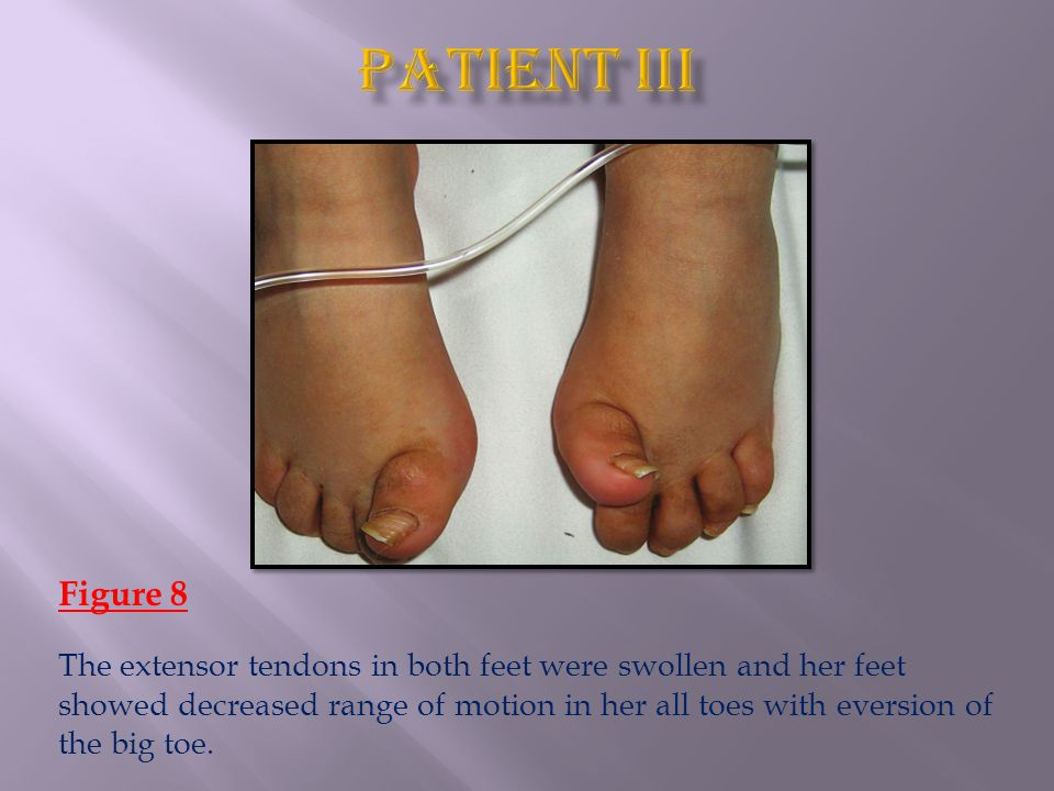 Figure 8 The extensor tendons in both feet were swollen and her feet showed decreased range of motion in her all toes with eversion of the big toe.
