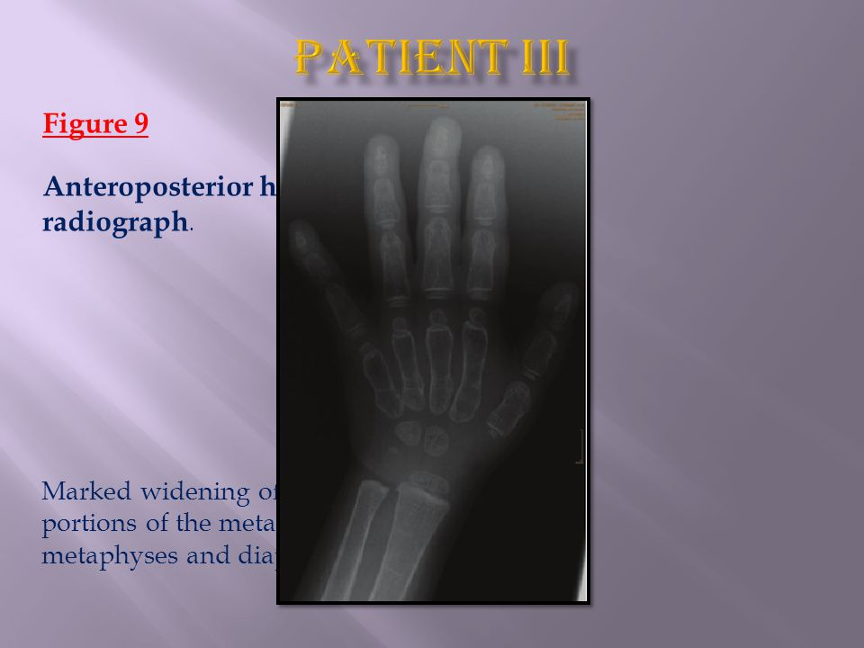 Figure 9 Anteroposterior hand radiograph. Marked widening of the distal portions of the metacarpal metaphyses and diaphyses.