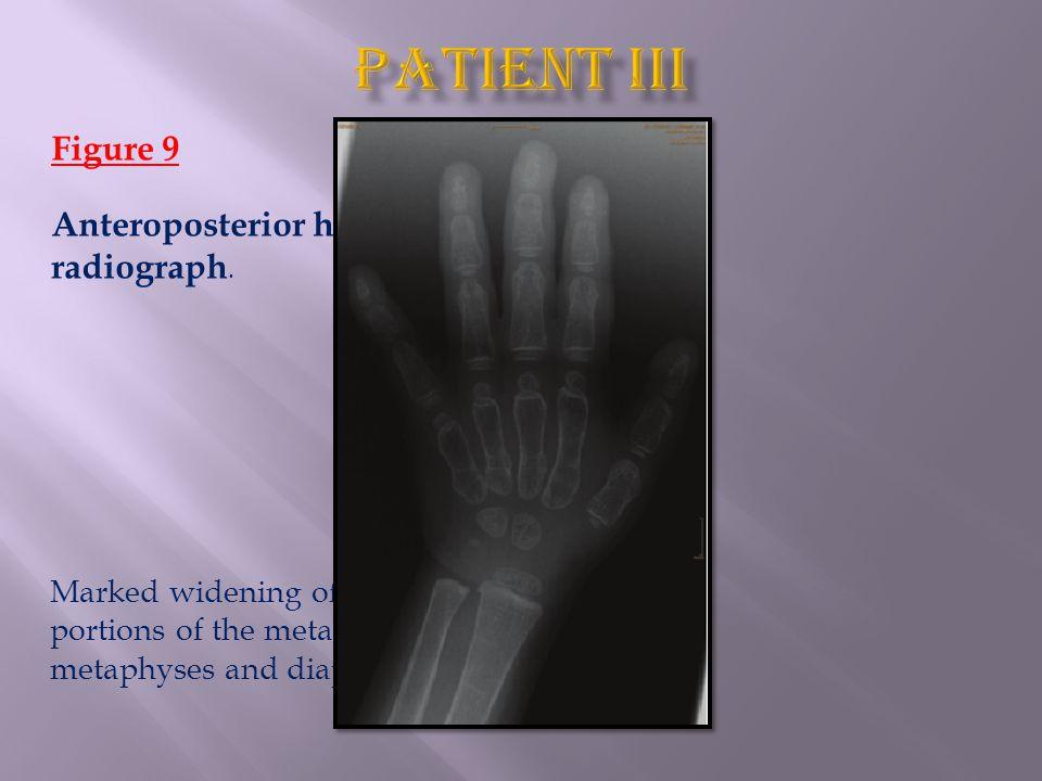 Figure 9 Anteroposterior hand radiograph.