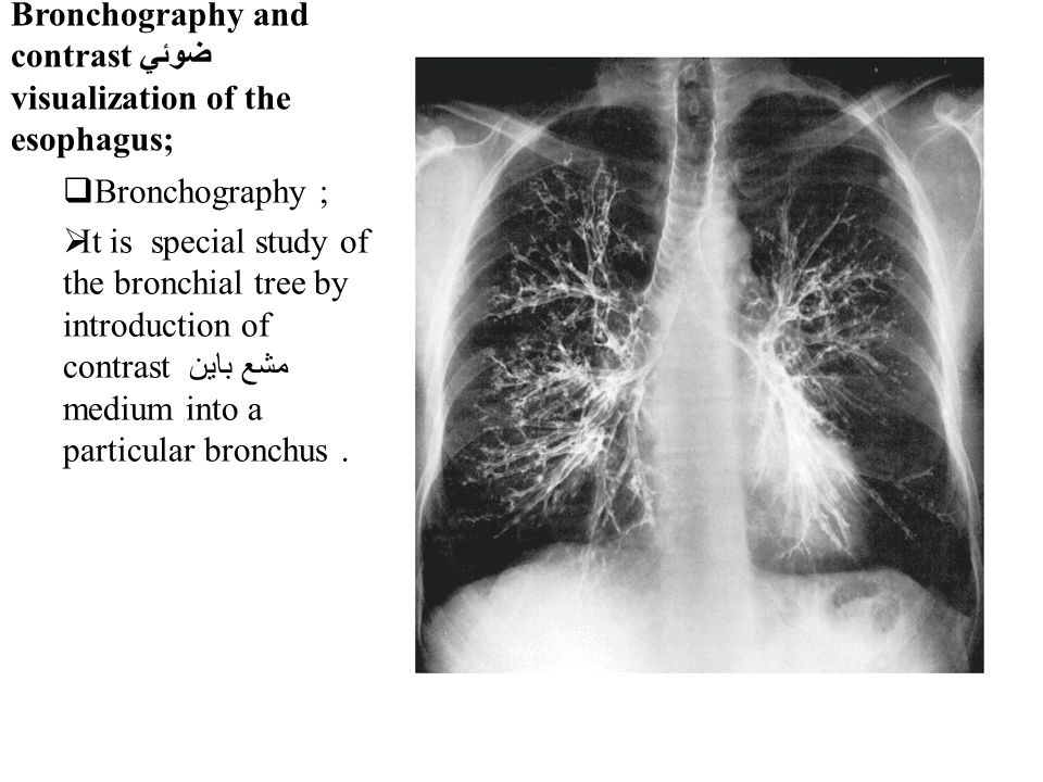 Bronchography and contrast ضوئي visualization of the esophagus;  Bronchography ;  It is special study of the bronchial tree by introduction of contrast مشع باين medium into a particular bronchus.