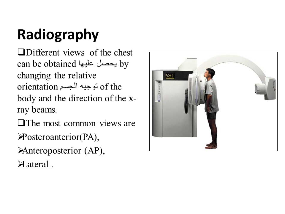 Radiography التصوير الاشعاعي A chest x-ray may be used to help diagnose and plan treatment for various conditions, including:  Fractures كسور of the bones in the chest, including the ribs, sternum, clavicle and the vertebrae.