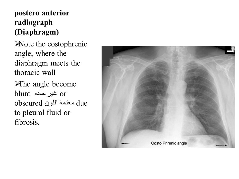 postero anterior radiograph (Diaphragm)  Note the costophrenic angle, where the diaphragm meets the thoracic wall  The angle become blunt غير حاده or obscured معتمة اللون due to pleural fluid or fibrosis.