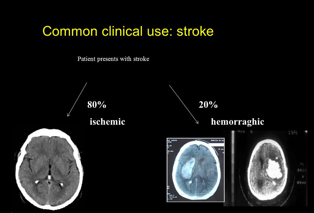Common clinical use: stroke Patient presents with stroke 80%20% ischemichemorraghic
