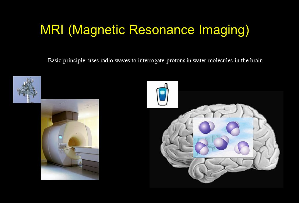 MRI (Magnetic Resonance Imaging) Basic principle: uses radio waves to interrogate protons in water molecules in the brain