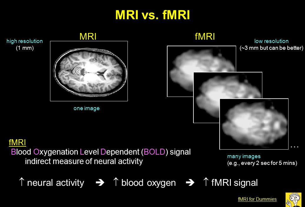 MRI vs. fMRI  neural activity   blood oxygen   fMRI signal MRIfMRI one image many images (e.g., every 2 sec for 5 mins) high resolution (1 mm) lo