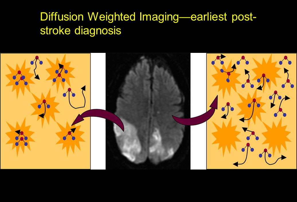 Diffusion Weighted Imaging—earliest post- stroke diagnosis