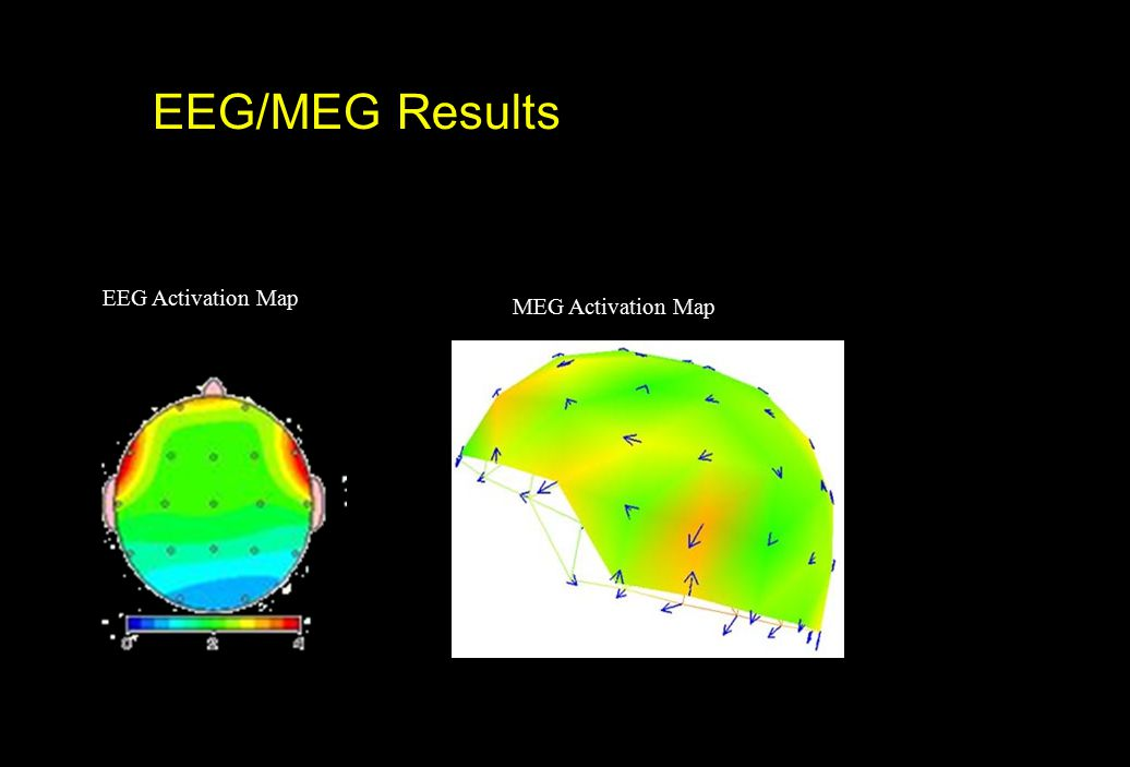 EEG/MEG Results EEG Activation Map MEG Activation Map