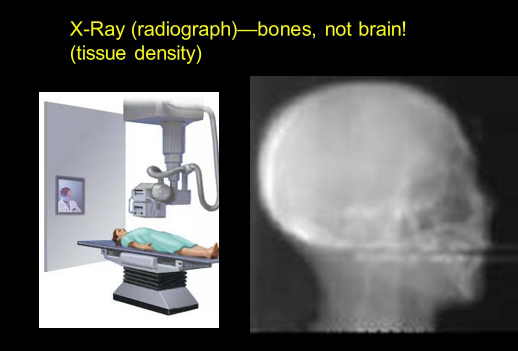 X-Ray (radiograph)—bones, not brain! (tissue density)