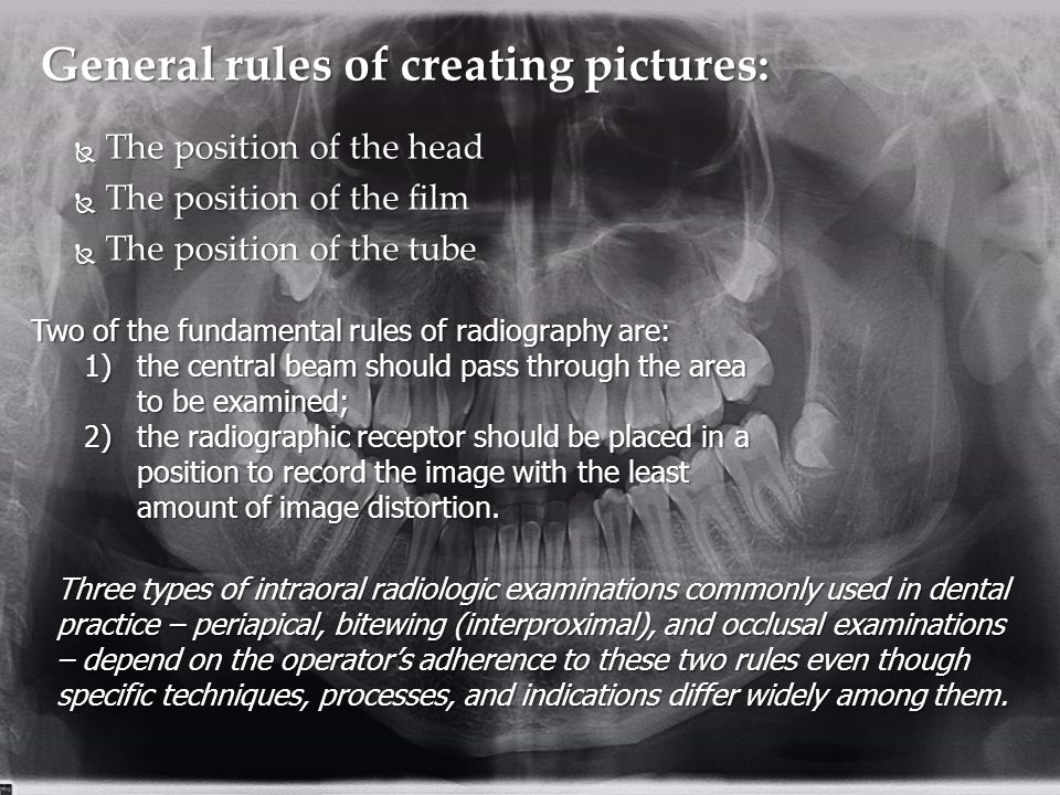  The position of the head  The position of the film  The position of the tube General rules of creating pictures: Two of the fundamental rules of radiography are: 1)the central beam should pass through the area to be examined; 2)the radiographic receptor should be placed in a position to record the image with the least amount of image distortion.