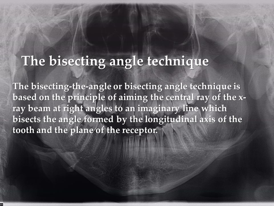 The bisecting-the-angle or bisecting angle technique is based on the principle of aiming the central ray of the x- ray beam at right angles to an imaginary line which bisects the angle formed by the longitudinal axis of the tooth and the plane of the receptor.