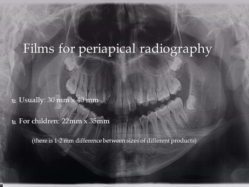  Usually: 30 mm x 40 mm  For children: 22mm x 35mm (there is 1-2 mm difference between sizes of different products) Films for periapical radiography