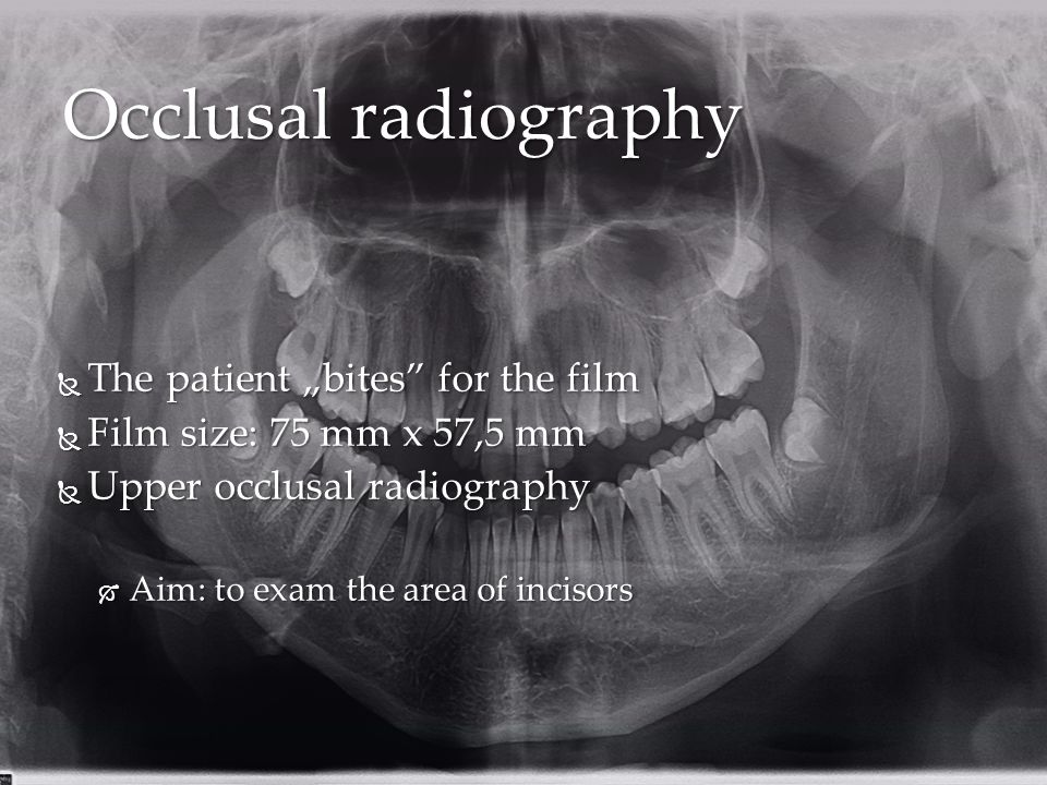 """Occlusal radiography  The patient """"bites for the film  Film size: 75 mm x 57,5 mm  Upper occlusal radiography  Aim: to exam the area of incisors"""