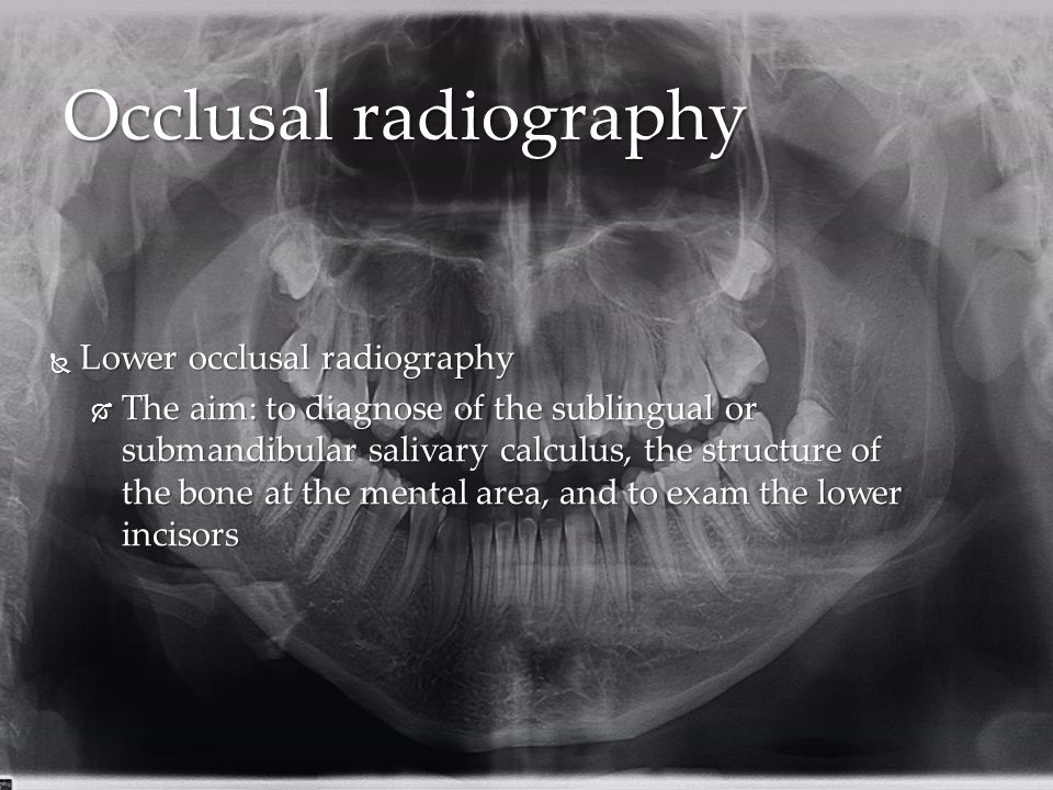  Lower occlusal radiography  The aim: to diagnose of the sublingual or submandibular salivary calculus, the structure of the bone at the mental area, and to exam the lower incisors Occlusal radiography