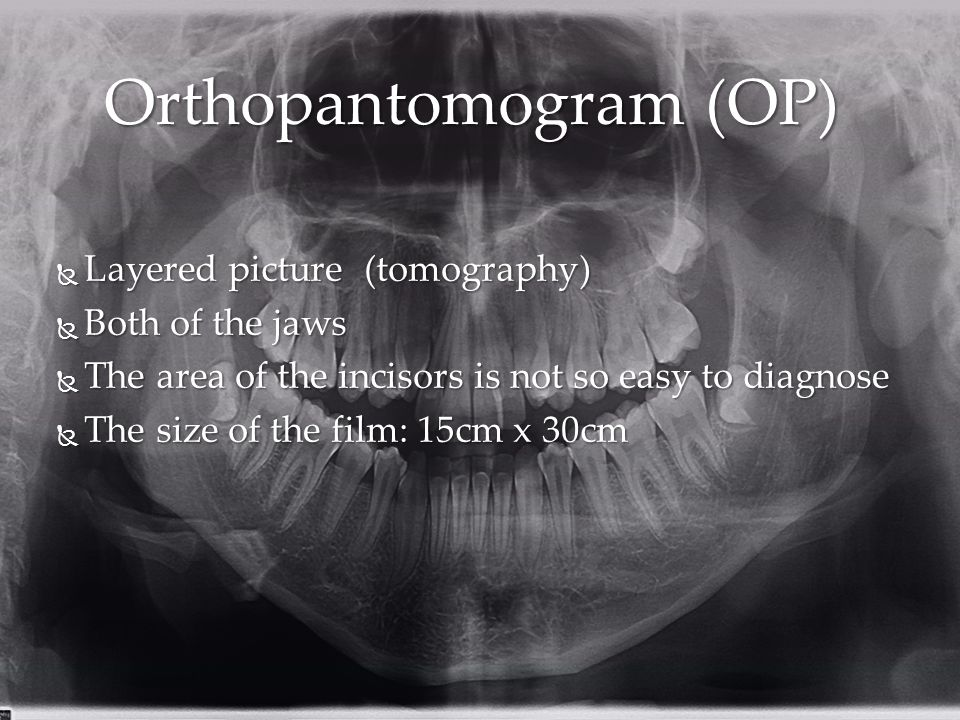 Orthopantomogram (OP)  Layered picture (tomography)  Both of the jaws  The area of the incisors is not so easy to diagnose  The size of the film: 15cm x 30cm