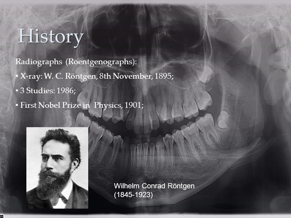 History Wilhelm Conrad Röntgen (1845-1923) Radiographs (Roentgenographs): X-ray: W.