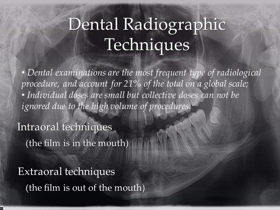 Dental Radiographic Techniques Intraoral techniques (the film is in the mouth) Extraoral techniques (the film is out of the mouth) Dental examinations are the most frequent type of radiological procedure, and account for 21% of the total on a global scale; Individual doses are small but collective doses can not be ignored due to the high volume of procedures.