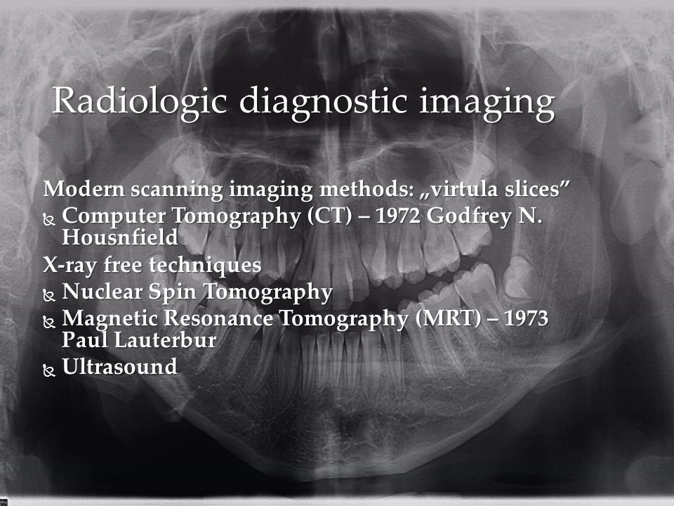 "Modern scanning imaging methods: ""virtula slices  Computer Tomography (CT) – 1972 Godfrey N."