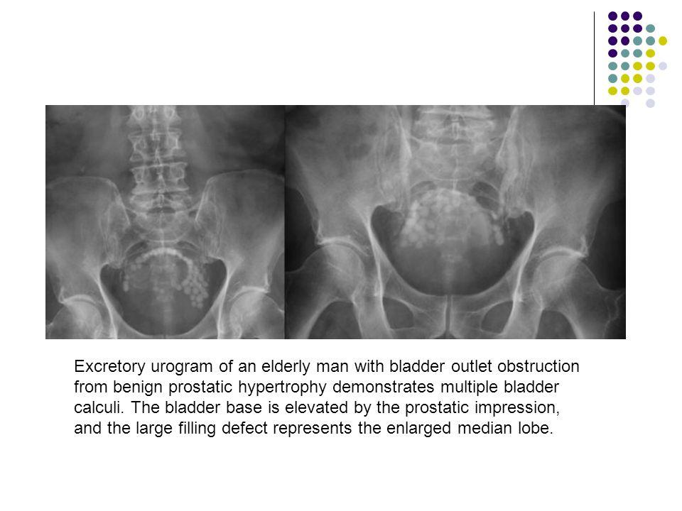 Excretory urogram of an elderly man with bladder outlet obstruction from benign prostatic hypertrophy demonstrates multiple bladder calculi.