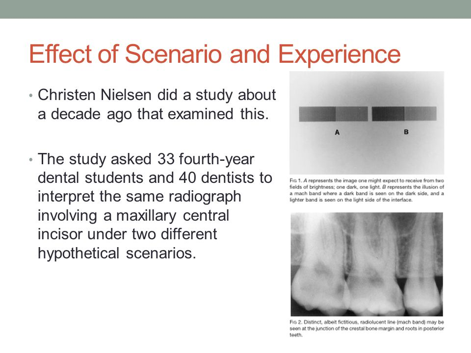 Discussion The results of the study show that students are more likely than experienced dentists to interpret the cervical crest of bone as a root fracture.