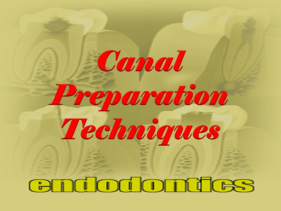 Glide Path 10 15 (Canal Patency) Canal Shaping 30 25 20 (Repeat until 25 to WL)