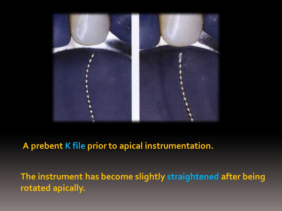A prebent K file prior to apical instrumentation. The instrument has become slightly straightened after being rotated apically.