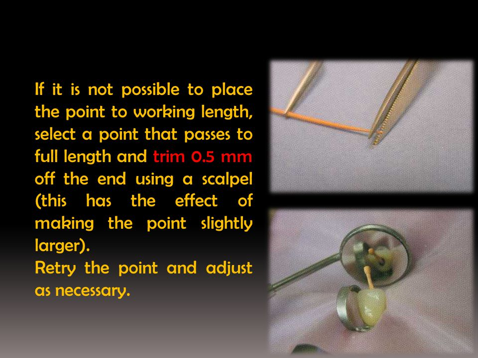If it is not possible to place the point to working length, select a point that passes to full length and trim 0.5 mm off the end using a scalpel (thi
