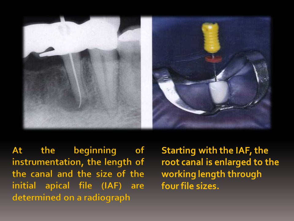 Following enlargement of the coronal portion, the working length is determined radiographically with a size 15 K file in place.