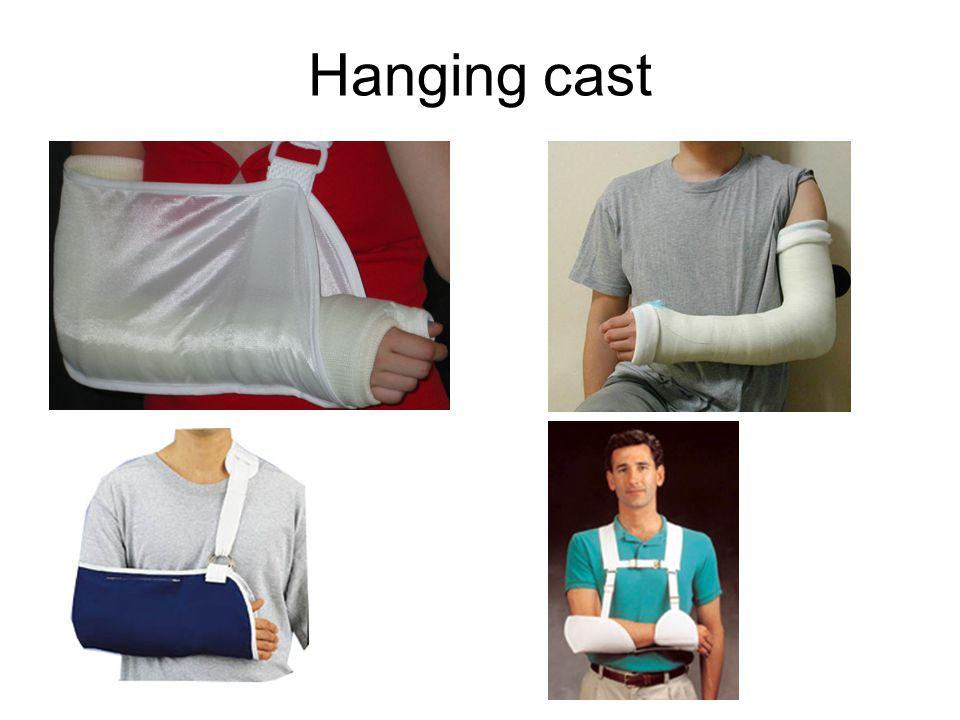 Hanging cast