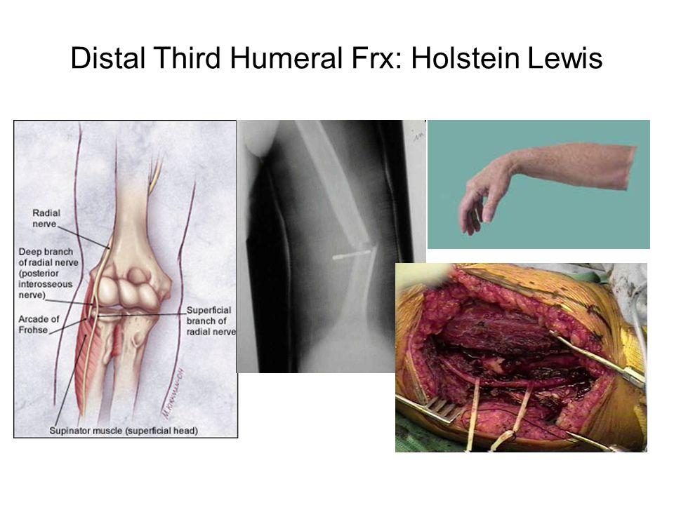 Distal Third Humeral Frx: Holstein Lewis