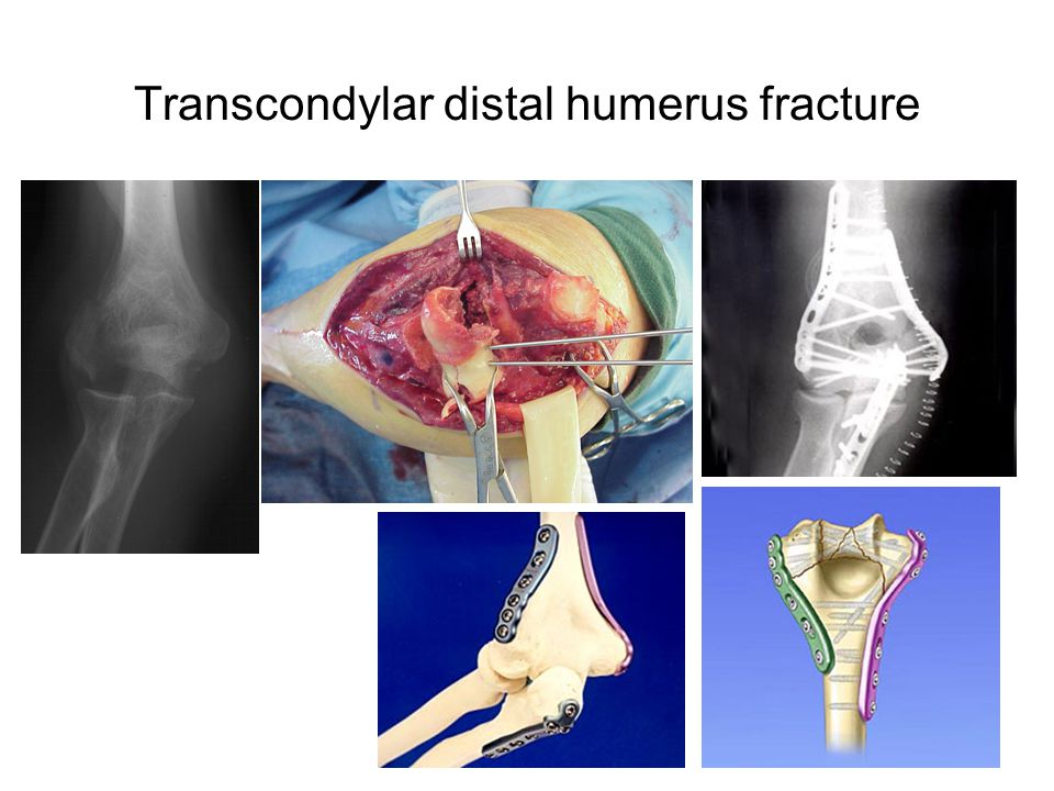 Transcondylar distal humerus fracture
