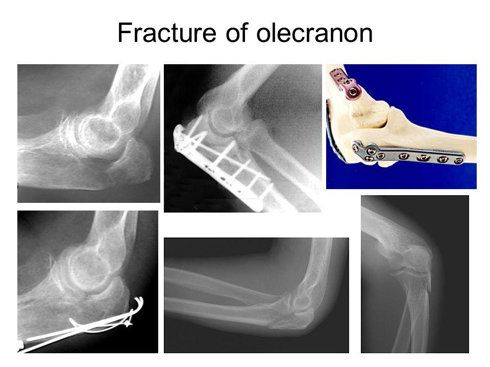 Fracture of olecranon