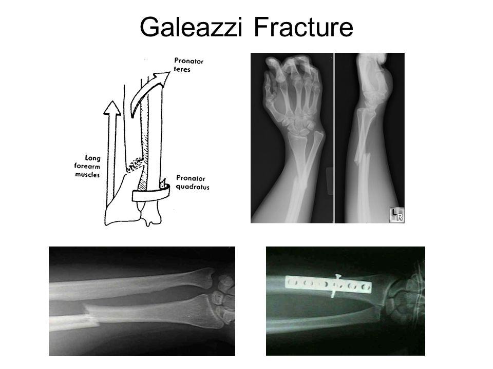 Galeazzi Fracture