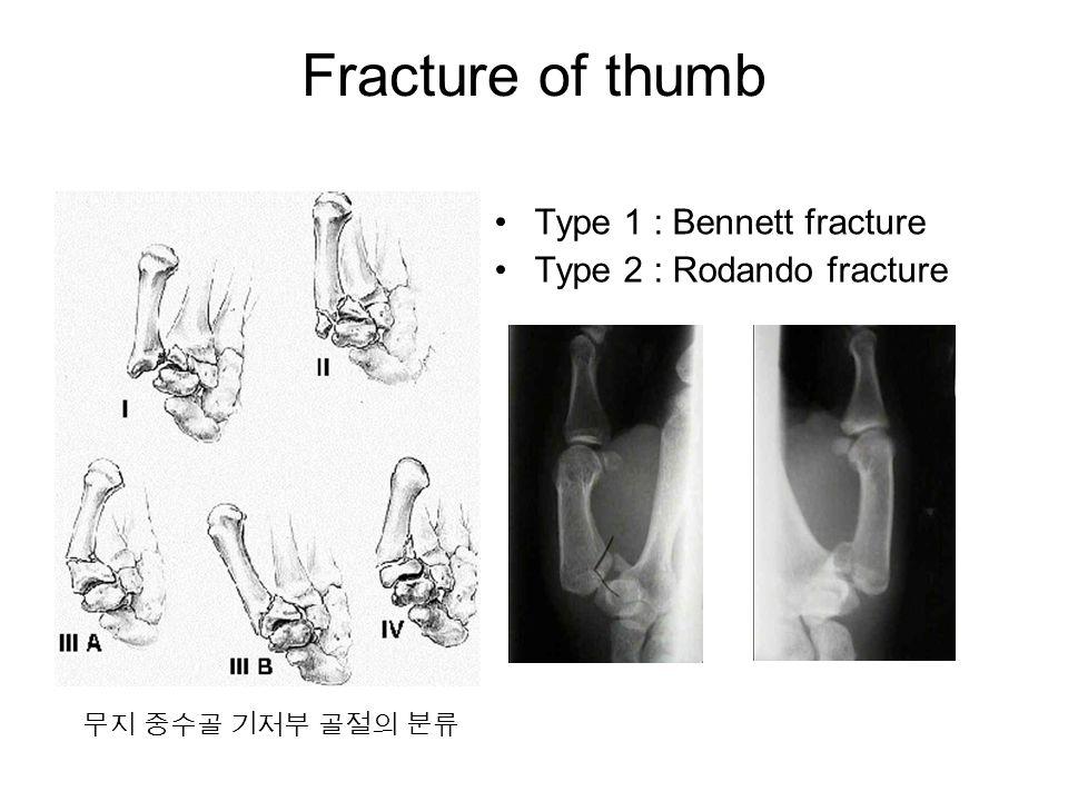 Fracture of thumb Type 1 : Bennett fracture Type 2 : Rodando fracture 무지 중수골 기저부 골절의 분류