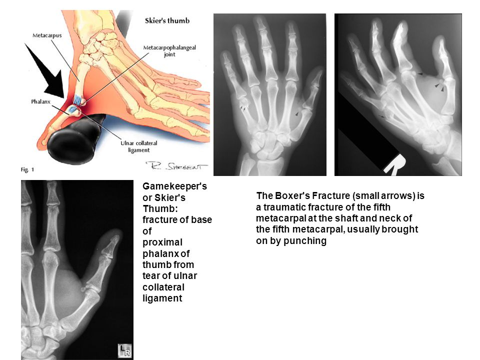 Gamekeeper's or Skier's Thumb: fracture of base of proximal phalanx of thumb from tear of ulnar collateral ligament The Boxer's Fracture (small arrows