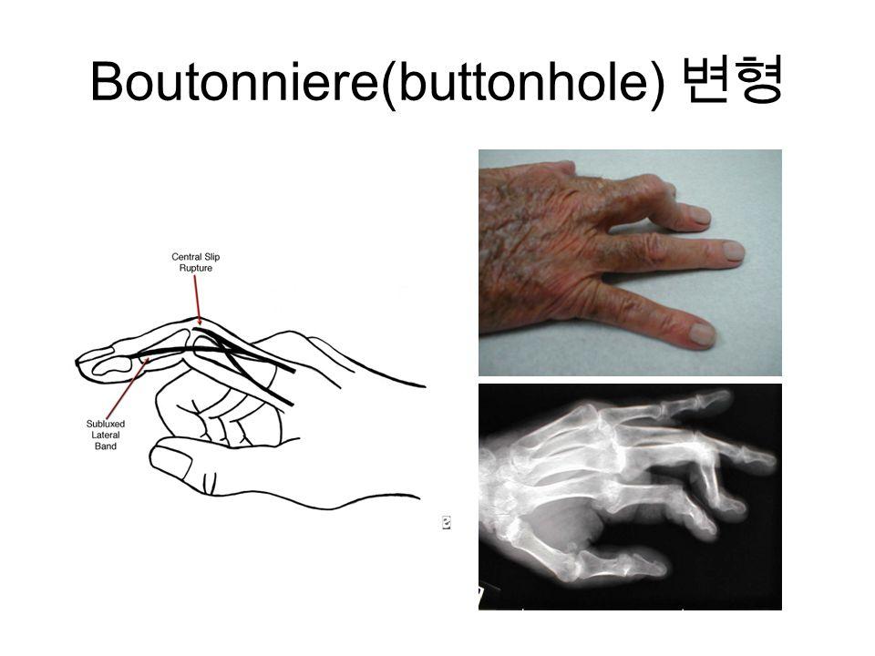 Boutonniere(buttonhole) 변형