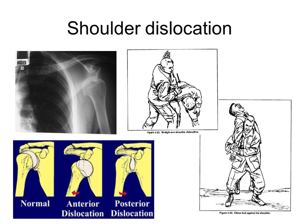 Shouder dislocation reduction