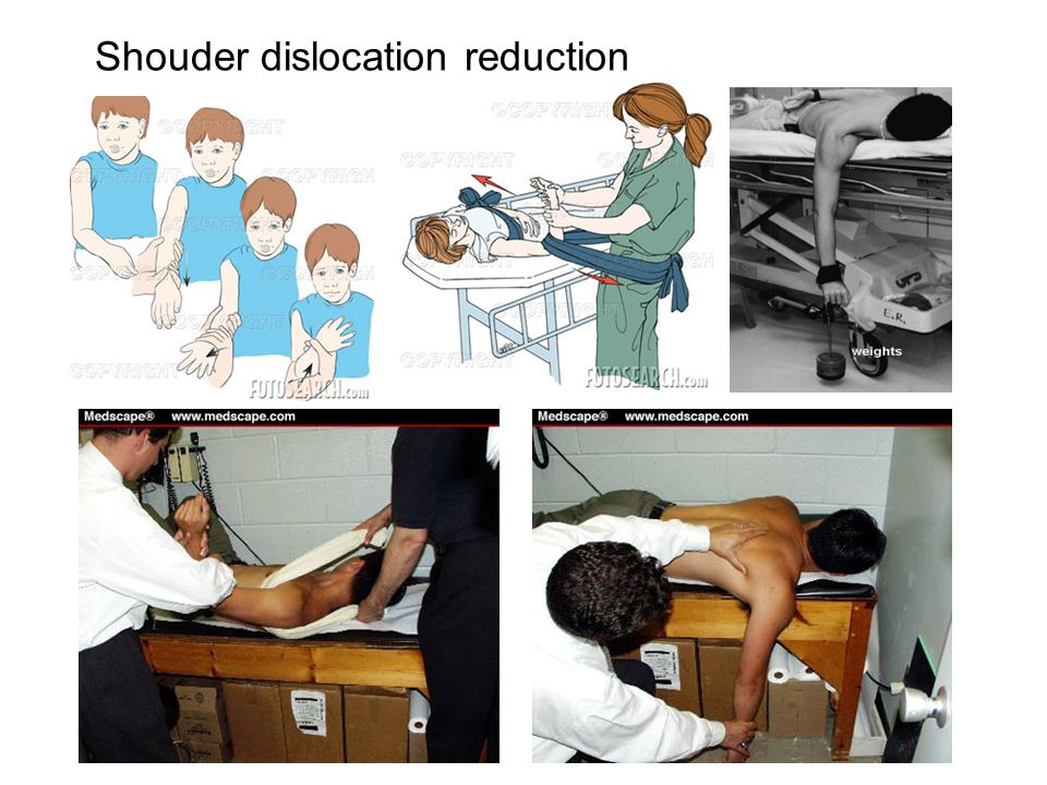 Shouder dislocation reduction