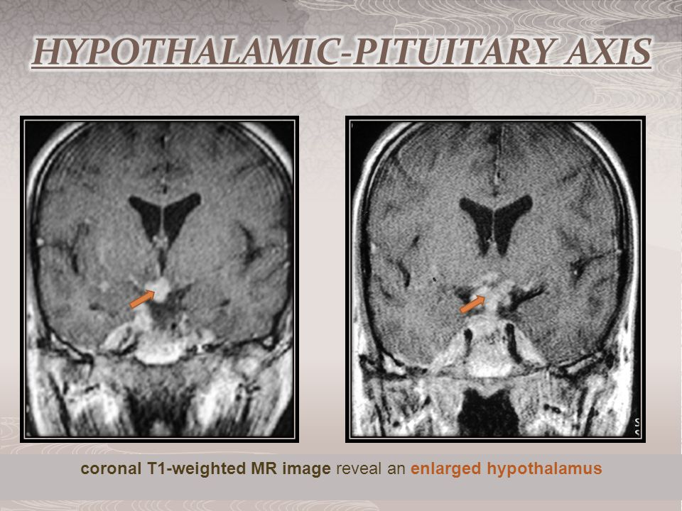 coronal T1-weighted MR image reveal an enlarged hypothalamus