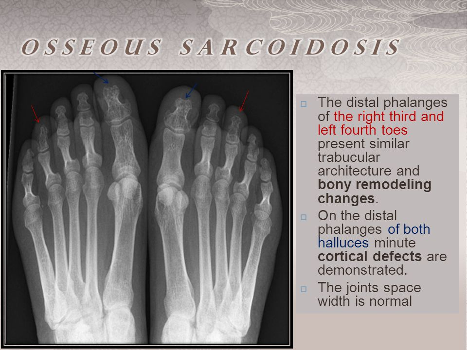  The distal phalanges of the right third and left fourth toes present similar trabucular architecture and bony remodeling changes.