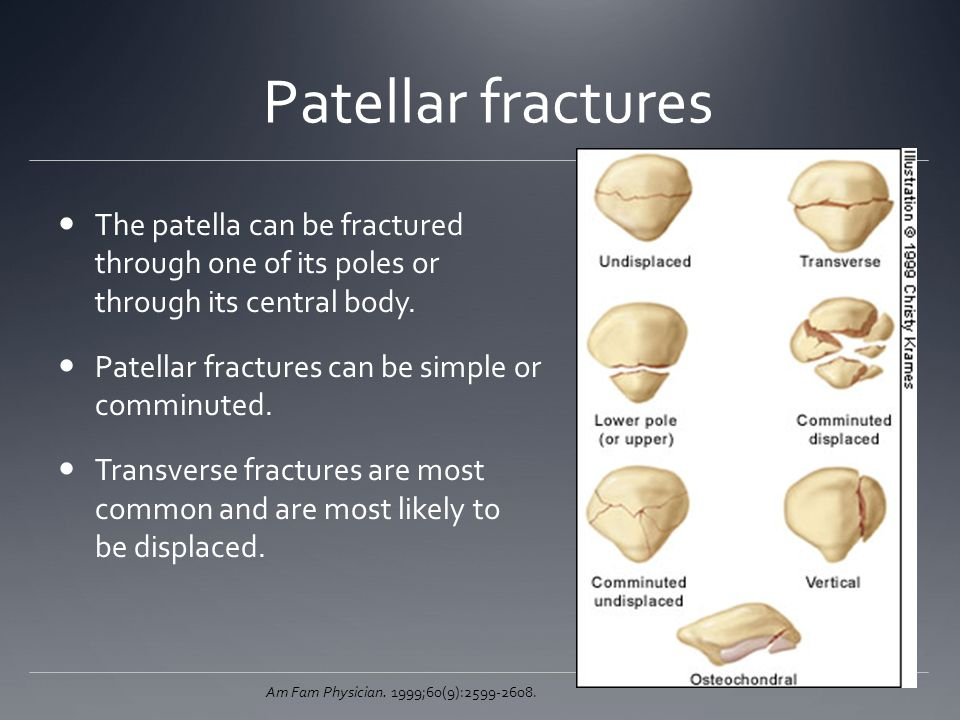 Patellar fractures The patella can be fractured through one of its poles or through its central body. Patellar fractures can be simple or comminuted.