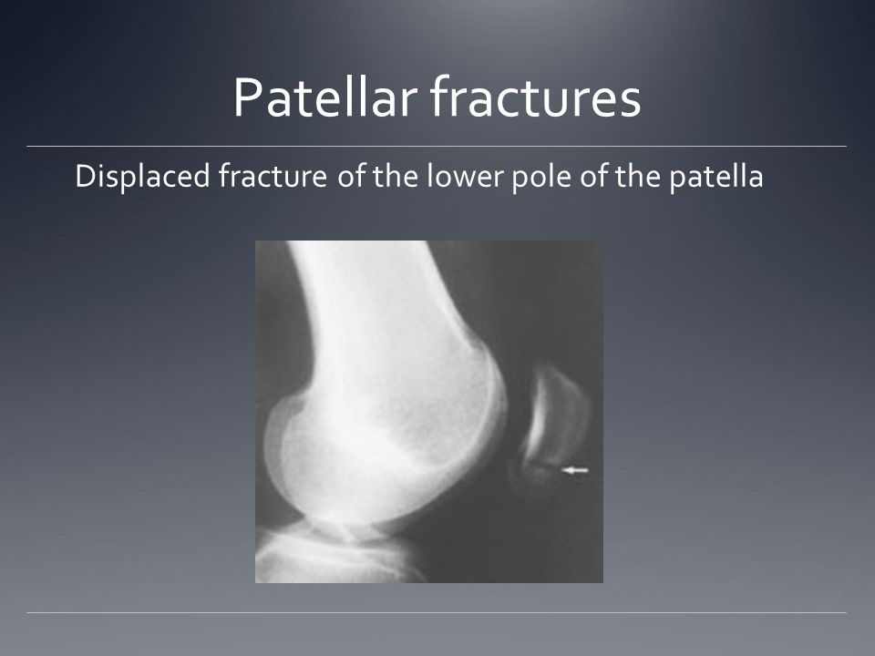 Patellar fractures Displaced fracture of the lower pole of the patella