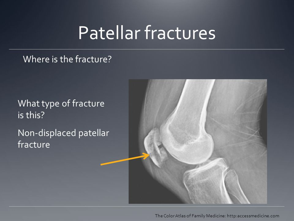 Patellar fractures Where is the fracture? The Color Atlas of Family Medicine: http:accessmedicine.com What type of fracture is this? Non-displaced pat